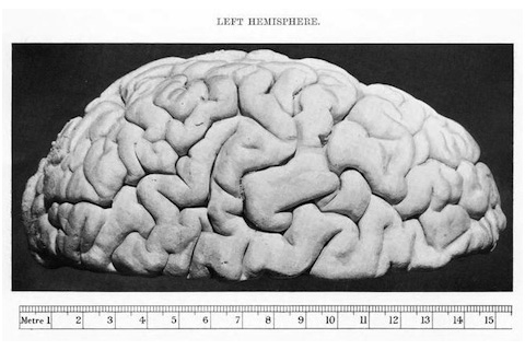The Brain of Charles Babbage